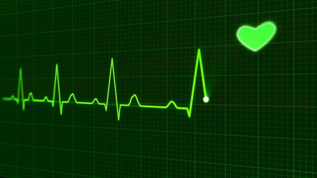 графическое изображение биения сердца